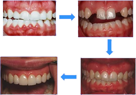 Teeth Veneers Missing For